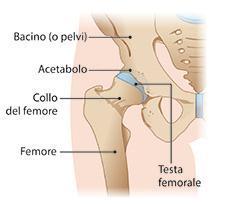 dolore alla frattura da stress pelvico